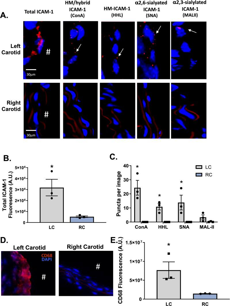 HM / hybrid, HM, and α-2,6-sialylated ICAM-1 are increased in mouse atherosclerosis after induction of disturbed flow in vivo . Panel A shows representative images of total ICAM-1 HM / hybrid, HM, α2,6-sialylated, and α2,3-sialylated ICAM-1 in the left carotid artery (after partial ligation) and paired right carotid artery (control). Positive PLA puncta are indicated by arrows. Panels B C show total ICAM-1 staining in left versus right carotid artery and ICAM-1 N-glycoforms puncta, respectively. Data are mean ± SEM, each symbol represents an individual mouse, n = 3. *p