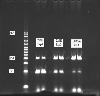 Polyacrylamide gel electrophoresis of hCoV <t>PCR</t> products. PCR products from two experiments, one where each well contained 3 μl of hCoV229E RNA (Exp1) and another 5 μl, to increase yield (Exp2) and products from RNA produced from the pEX-A vector. HypperLadder V marks are from bottom, 25, 50, 75, 100 bp up to 500. The marks at 50 bp are due to primer dimmers which are known to form in <t>SYBR</t> Green PCRs