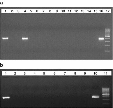 Gel picture showing amplification of a human metapneumovirus (hMPV) semi-nested polymerase chain reaction (PCR) and b human bocavirus (hBoV) one-step PCR in patient samples. a Lanes 1 and 4 patient samples showing specific amplification for hMPV at 365 bp; lane 16 positive control; lane 17 molecular weight marker (100 bp ladder). b Lane 1 patient sample showing specific amplification for HBoV; lane 10 positive control; lane 11 molecular weight marker (100 bp ladder)