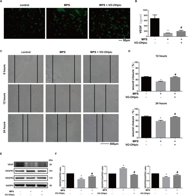 VO-OHpic exerts protective effects on MPS-regulated angiogenesis of EPCs. a Representative images of tube formation of EPCs after treatment with 50-μM MPS or 50-μM MPS combined with 1-μM VO-OHpic for 48 h. b VEGF protein concentration in the culture medium of EPCs as determined by ELISA after treatment for 48 h. c Wound healing assay was performed and representative images were taken after 12 h and 24 h in EPCs treated with 50-μM MPS or 50-μM MPS combined with 1-μM VO-OHpic. d The wound closure rate was measured and relatively compared to the control group with no treatment of MPS and VO-OHpic. e VEGF, VEGFR1, and VEGFR2 protein levels were determined by western blot analysis after treatment for 48 h. f Band density ratios of VEGF, VEGFR1, and VEGFR2 to GAPDH in the western blot analysis were quantified by densitometry. All experiments were repeated for three times; ∗ P