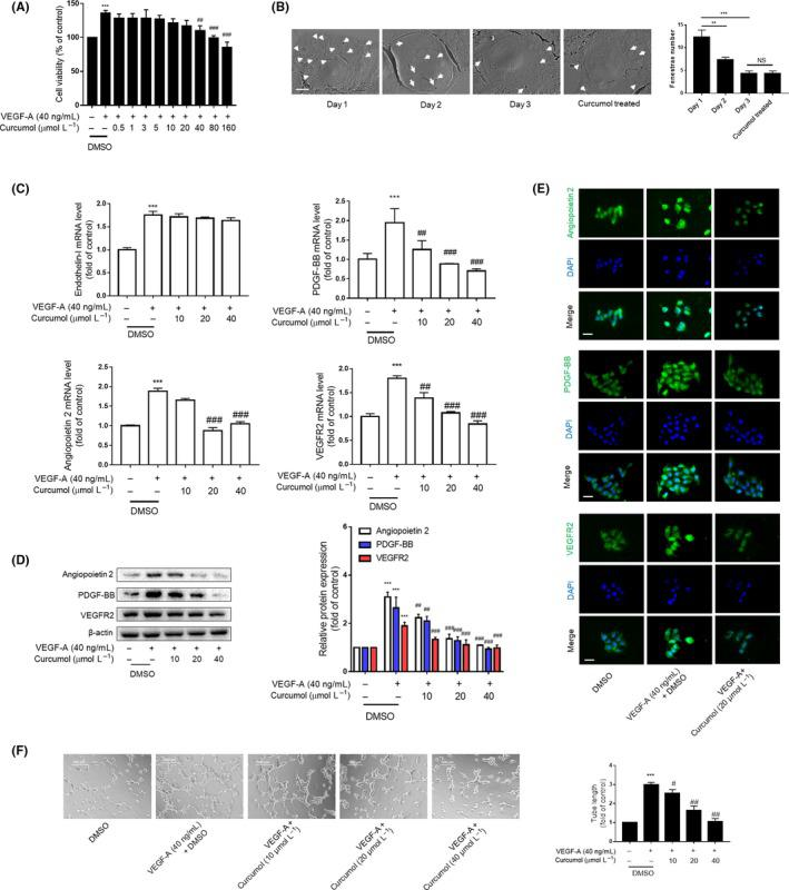 Curcumol inhibits LSEC angiogenesis in vitro. Liver sinusoidal endothelial cells (LSECs) were treated with DMSO or VEGF‐A (40 ng/mL) and different concentrations of curcumol for 24 h. A, Cell viability was determined using MTT. Data were expressed as percentage of control value (n = 6). B, Primary LSECs were cultured on collagen‐covered plates, and the fenestrae were observed with scanning electron microscope scale. Day 1 LSECs show numerous fenestrae (arrowhead). Day 2 and 3 LSECs have few fenestrae. Primary LSECs treated with curcumol (20 μmol/L) for 24 h and cultured for 2 d presented sporadic fenestrae (n = 3). Bar = 5 μm. C, Real‐time PCR analysis of angiogenic cytokines. Data were expressed as fold of control value (n = 4). D, Western blot analyses of angiogenic cytokines (n = 3). E, Immunofluorescence analysis of angiogenic cytokine expression (n = 3). Scale bar = 20 μm. F, Tubulogenesis assay was visualized and quantified with ImageJ (n = 3). Scale bar = 500 μm. * P