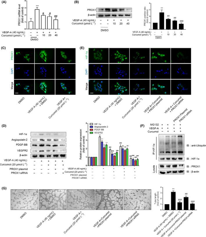 Curcumol inhibits liver sinusoidal endothelial cells (LSECs) angiogenesis via regulating PROX1. A, Real‐time PCR analysis of PROX1 mRNA in DMSO‐ and curcumol‐treated LSECs after the induction of VEGF‐A (n = 3). B, Western blot analysis of PROX1 protein expression in LSECs (n = 3). C and E, Immunofluorescence analysis of PROX1 and HIF‐1α protein expression in LSECs (n = 3). Scale bar = 20 μm. D, Western blot analysis of HIF‐1α and angiogenic properties of LSECs treated with the above models plus PROX1 plasmid (n = 3). F, LSECs were treated with protease inhibitor MG132 (10 mg/mL) for 6 h after drug treatment. Co‐IP assays were conducted with anti‐HIF‐1α, followed by detection of ubiquitin, HIF‐1α and PROX1. G, Tubulogenesis assay was visualized and quantified with ImageJ (n = 3). Scale bar = 500 μm. * P