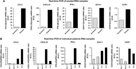 Quantitative real-time PCR of regulated genes. Pooled PBMC RNAs from HIV-1 viremic and aviremic individuals ( n = 5) were amplified using gene-specific primers as described in Methods. Expression pattern of up-regulated genes CCL2, CXCL10, IFN-γ, GCH1 and CCR1 are shown in (A). Individual patient's inflammatory gene array verification showed similar expression pattern in two HIV-1 viremic and aviremic individuals (B). Av and V stand for aviremic and viremic individuals, respectively. Fold change in mRNA was quantified in relation to internal housekeeper β-actin/GAPDH mRNA as described in Methods.