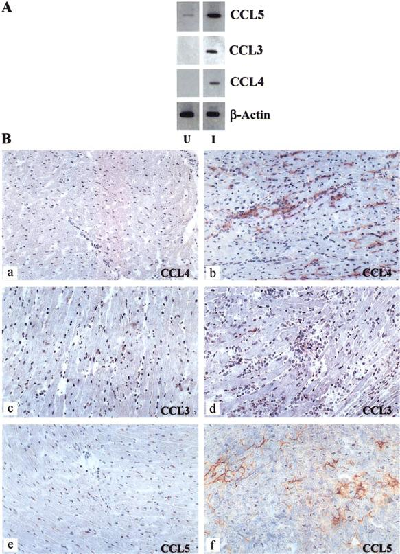 Expression of CCL3, CCL4, and CCL5 in the myocardia of Trypanosoma cruzi -infected mice. A , Total myocardial RNA was extracted from uninfected (U) and infected (I) mice on day 15 after infection, and expression of CCL3, CCL4, CCL5, and β-actin was assessed by reverse-transcription polymerase chain reaction (PCR). The PCR products were electrophoresed in polyacrylamide gels and stained with silver nitrate. B , Hearts of uninfected ( a, c , and e ) and infected ( b, d , and f ) mice on day 20 after infection with 1000 trypomastigote forms of T. cruzi were prepared for immunohistochemical analysis, and the presence of CCL4 ( a and b ), CCL3 ( c and d ), and CCL5 ( e and f ) were evaluated by use of the immunoperoxidase method (see Materials and Methods). The presence of the chemokines was revealed by use of diaminobenzidine tetrahydrochloride as the substratum for the peroxidase, which generated a brown coloration. Results shown are representative of 3 different experiments. Original magnification for all microphotographs, x 200.