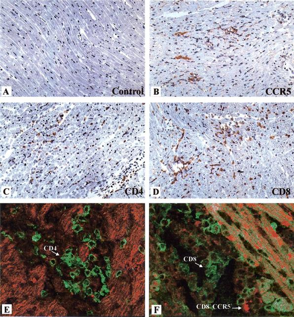 Expression of CCR5, CD8, and CD4 in the myocardia of uninfected or Trypanosoma cruzi -infected mice. Hearts of uninfected ( A ) or infected ( B-F ) mice on day 17 after infection with 1000 trypomastigote forms of T. cruzi were obtained and prepared for analysis by immunohistochemistry and immunofluorescence. Expression of CCR5 ( A and B ), CD4 ( C ), and CD8 ( D ) in myocardia was evaluated by use of the immunoperoxidase method (see Materials and Methods). Diaminobenzidine tetrahydrochloride was used as the substratum for the peroxidase, which generated a brown coloration. Panels E and F show the results of double immunofluorescence labeling, in which CD4 ( E ) and CD8 ( F ) were stained with fluorescein-labeled specific antibody and CCR5 ( E and F ) was stained with antibody conjugated with Texas red. Original magnification for all microphotographs, x 200.