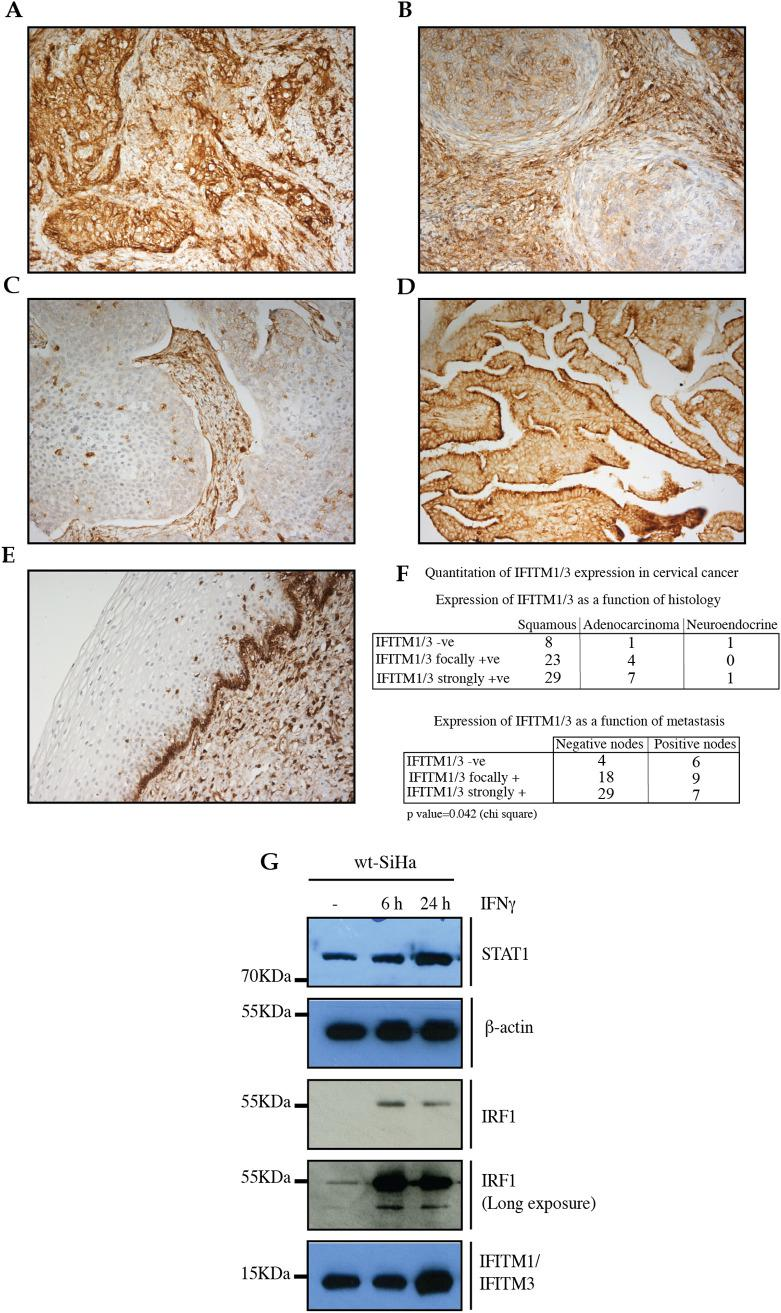 Immunohistochemical analysis of IFITM1/3 protein expression in cervical cancers using the Mab-MHK. Formalin-fixed, paraffin-embedded cervical carcinoma tissue was processed as stated in the Experimental Procedures using the Mab-MHK that binds to shared epitopes in the N-terminal domains of IFITM1 and IFITM3 (Supplementary Fig. 1A, B). Representative images highlight grades of IFITM1/3 protein expression; (A). high expression in squamous cell carcinoma, (B). medium expression in squamous cell carcinoma, (C). absence of expression in squamous cell carcinoma, (D). high expression in adenocarcinoma, and (E). expression in basal stem cell layer in normal tissue . (F). (Top panel); Quantification of IFITM1/3 protein expression in cervical cancer in relation to histology type and (Bottom panel) IFITM1/3 protein expression in cervical cancer in relation to lymph node metastasis, excluding neuroendocrine. (G). Immunoblotting of protein expression in the parental SiHa cells after IFNγ treatment for the indicated time points. Proteins evaluated include; STAT1; β-actin, IRF1, and IFITM1/3.