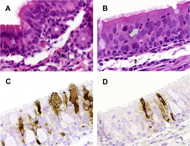 Representative HE findings in respiratory epithelium of the nasal turbinates of MERS-CoV-infected alpacas and immunohistochemical reactions of the commercially available positive controls for comparison. (A) Multifocal infiltration of lamina propria and submucosa by moderate numbers of lymphocytes, macrophages, and single neutrophilic granulocytes (asterisk). (B) Exocytosis of single neutrophilic granulocytes (grey arrow). (C, D) Abundant viral antigen was detected multifocally in the cytoplasm and along the apical membranous region of epithelial cells using a monoclonal mouse (C, Sino Biological Inc.) and polyclonal rabbit anti-MERS-CoV nucleocapsid antibody (D, Sino Biological Inc.) with citrate pretreatment, in a dilution of 1:70 and 1:2,000, respectively. Both antibodies exhibited a similar staining intensity. (A, B) HE staining; 400x, (C, D) Avidin-biotin-peroxidase complex method with 3,3′-diaminobenzidine as chromogen; 400x.