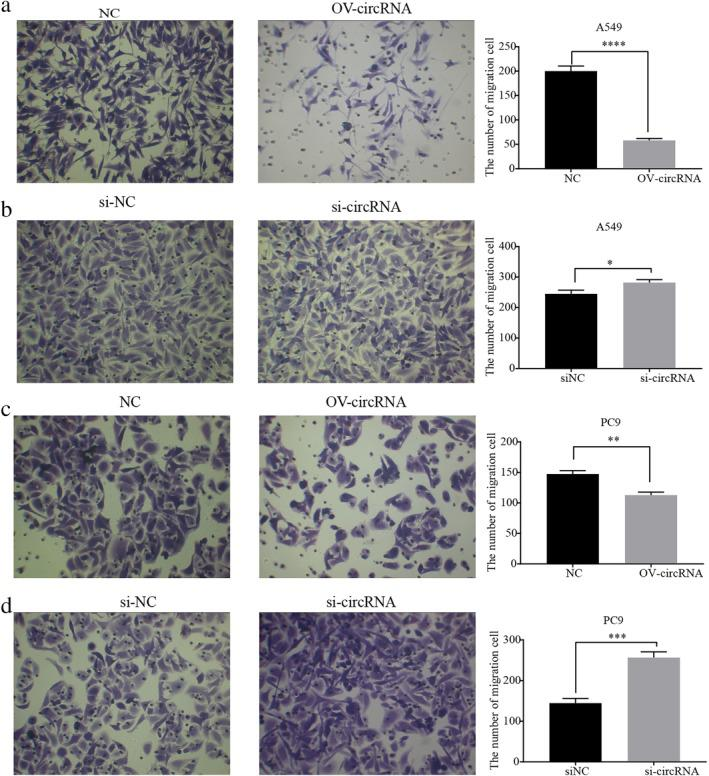 Circ‐IGF1R inhibited invasion of lung cancer A549 and PC9 cell lines. Invasion of cells after overexpression of circ‐IGF1R by Transwell assay in lung cancer A549 ( a ) and PC9 ( c ) cell lines was significantly inhibited ( P