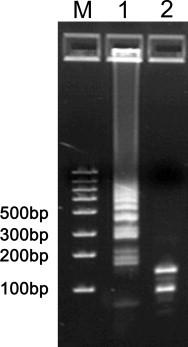 Restriction enzyme digestion of RT-LAMP products. Undigested RT-LAMP products (Lane 1) and products digested with HpyCH4V (Lane 2). M, marker.