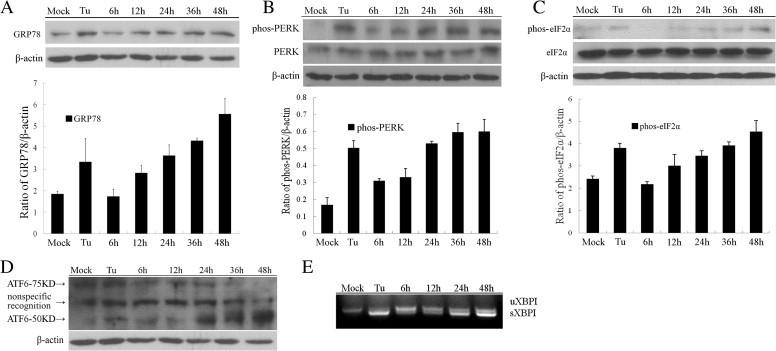 PEDV induces the host cellular UPR signaling pathways. Vero cells were infected with PEDV at MOI of 0.01 or treated with Tu, the samples were collected at 0, 6, 12, 24, 36 and 48 h.p.i. (A–C) The expression of GRP78, PERK and eIF2α in the samples was analyzed by Western blot. β-Actin was used as sample loading control. (D) The cleavage of ATF6 during UPR was analyzed by Western blot. (E) Unspliced (uXBP-1) and spliced (sXBP-1) mRNA were analyzed by RT-PCR using specific primer pairs.