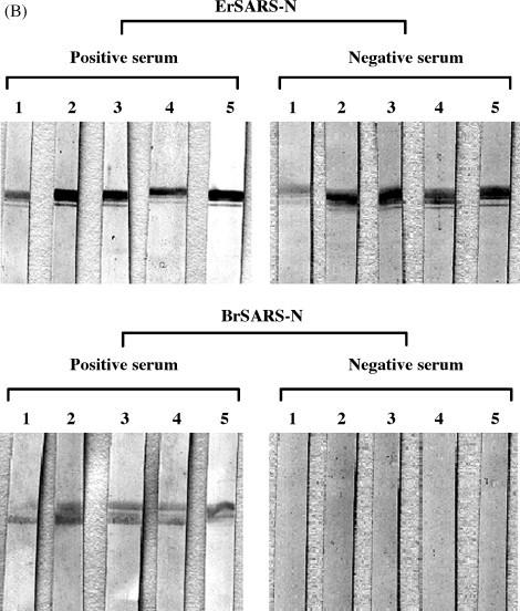 Antigenic specificity analysis of recombinant SARS-N protein against human serum. (A) Purified BrSARS-N and ErSARS-N (200 ng/well) were coated onto the each microtiter plates, respectively. SARS positive (upper panel) and negative sera (lower panel) were incubated in each coated well, followed by <t>HRP-conjugated</t> anti-human <t>IgG,</t> and detection using TMB substrate solution, which indicated that all five SARS negative sera were highly cross-responsive with ErSARS-N protein, but not with BrSARS-N. (B) Purified BrSARS-N and ErSARS-N proteins were separated by SDS-PAGE and transferred to a nitrocellulose membrane separately. The membranes were cut into strips and incubated with five SARS positive sera and five SARS negative sera, followed by HRP-conjugated anti-human IgG, and proteins were detected using DAB staining. All five SARS negative sera showed strong positive bands with ErSARS-N protein, but not with BrSARS-N, suggesting that BrSARS-N protein is more specific than ErSARS-N protein.