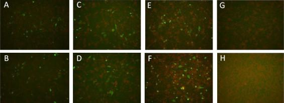 Staining of rabies virus granules in BHK-21 cells 4 days after transfection. (A, C, E) Cells transfected with rCTN-Gluc, rCTN/G Q333R -Gluc and rCTNΔG-Gluc plus pVAX1-N, P, L. (B, D, F) Cells transfected with rCTN-Gluc, rCTN/G Q333R -Gluc and rCTNΔG-Gluc plus pVAX1-N, P, G, L. (G–H) Negative control.
