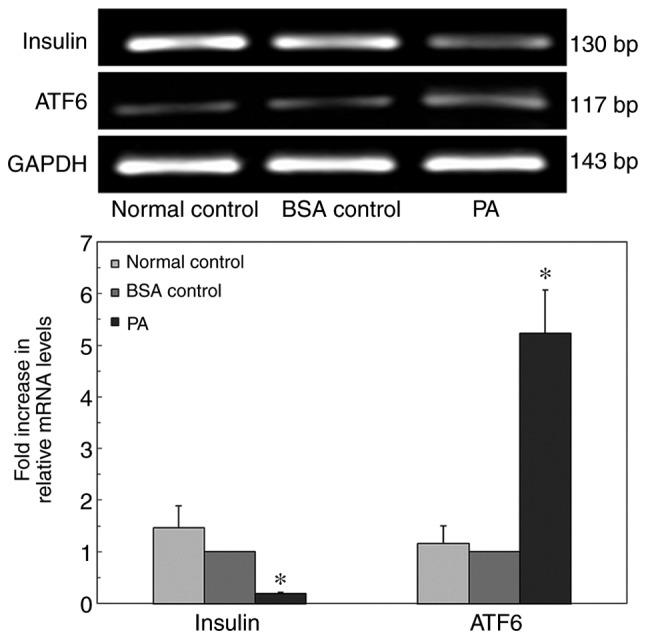 Quantitative <t>PCR</t> analysis of ATF6 and insulin mRNA expression in INS-1 cells cultured in a high-lipid environment. *P