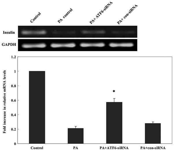 Quantitative PCR analysis of insulin mRNA expression 24 h after PA treatment in INS-1 cells transfected with ATF6-siRNA. *P