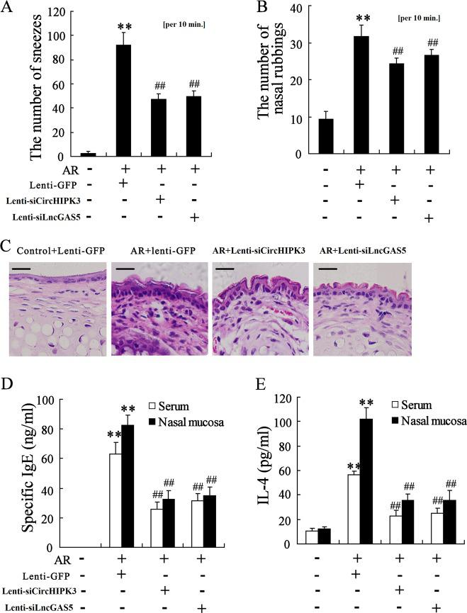Knockdown of CircHIPK3 or LncGAS5 alleviates nasal symptoms of AR mice. AR mice were intranasally treated with CircHIPK3 knockdown lentivirus (lenti-siCircHIPK3) or LncGAS5-knockdown lentivirus (lenti-siLncGAS5) ( n = 6 in each group). a , b The number of sneezes and nasal rubbings. c H E staining of the nasal mucosa (Scale bar = 10 μm). d , e Levels of IgE and IL-4 in serum and nasal mucosa were detected using ELISA. ** p