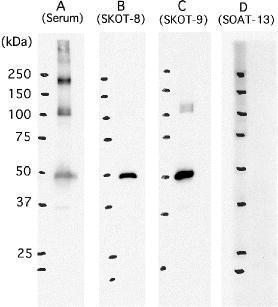 Immunoblot of SARS-CoV proteins with monoclonal antibodies. Purified SARS-CoV proteins (0.5 μg/lane) are electrophoresed with SDS-PAGE (under reducing conditions), blotted to PVDF membrane, and detected by incubation with mAbs against SARS-CoV proteins. The detection is done with peroxidase-labeled-F(ab′) 2 anti-mouse IgG followed by chemiluminescent reaction: (A) Mouse serum from SARS-CoV immunized mouse. (B) Anti-N mAb, SKOT-8. (C) Anti-N mAb, SKOT-9. (D) Anti-S mAb, SOAT13. The positions of molecular weight markers are shown on the left. (Reproduced from( 6 ) with permission.)