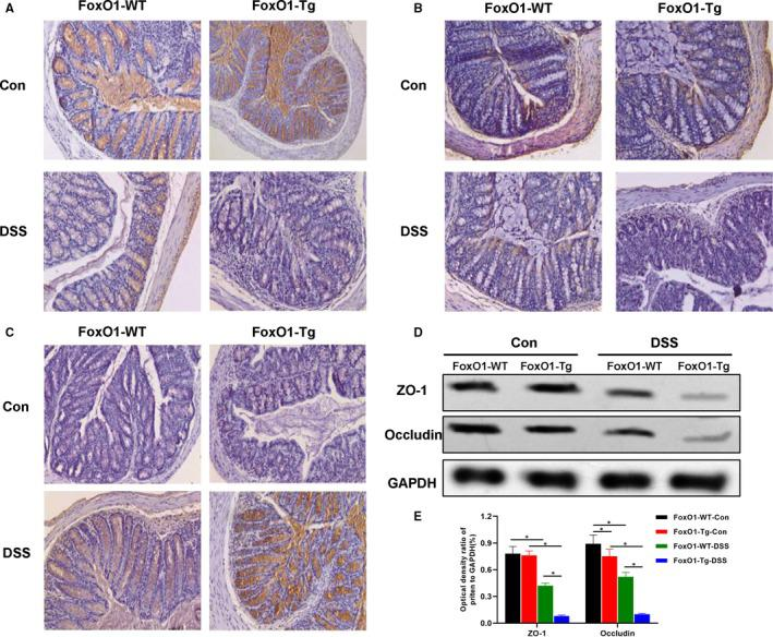 Effects of FoxO1 on the expression of tight junction protein in mice with chronic colitis. A, Expression of ZO‐1 protein in mouse intestinal tissue by IHC: ZO‐1 protein was strongly expressed in intestinal tissues of FoxO1‐WT‐Con and FoxO1‐Tg‐Con groups, which was significantly down‐regulated in FoxO1‐WT‐DSS and FoxO1‐Tg‐DSS groups. Meanwhile, the expression of ZO‐1 was significantly lower in FoxO1‐Tg‐DSS group than that of FoxO1‐WT‐DSS group. B, Expression of occludin protein in mouse intestinal tissue by IHC: Occludin protein was strongly expressed in intestinal tissues of FoxO1‐WT‐Con and FoxO1‐Tg‐Con groups, which was significantly down‐regulated in FoxO1‐WT‐DSS and FoxO1‐Tg‐DSS groups. Meanwhile, the expression of occludin was significantly lower in FoxO1‐Tg‐DSS group than that of FoxO1‐WT‐DSS group. C, Expression of FoxO1 protein in mouse intestinal tissue by IHC: The expression levels of FoxO1 were significantly increased in FoxO1‐WT‐DSS and FoxO1‐Tg‐DSS groups after DSS intervention, whereas the expression levels of FoxO1 were significantly higher in FoxO1‐Tg‐DSS group than those in FoxO1‐WT‐DSS group. D,E, The protein expression of ZO‐1 and occludin in intestinal tissue by Western blot. After DSS intervention, the expression levels of ZO‐1 and occludin were down‐regulated, whereas the expression levels of ZO‐1 and occludin were significantly lower in FoxO1‐Tg‐DSS than those in FoxO1‐WT‐DSS group. Comparison between groups, * P