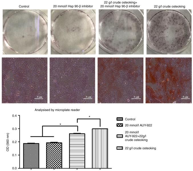 Inhibition of HSP90-β decreases calcium deposition. The alizarin red staining intensities in osteoblasts was measured using a microplate reader. The values are expressed as the mean ± standard deviation (n=6). * P