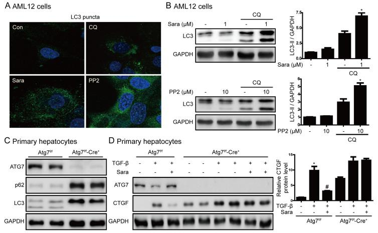 Induction of autophagy is required for prevention of liver fibrosis by saracatinib. ( A ) AML12 cells were treated with saracatinib, PP2, or chloroquine for 24 h and LC3 puncta formation was analyzed by immunofluorescence. Original magnification ×800. ( B ) Representative western blot showing the effects of saracatinib (1 μM), PP2 (10 μM), and chloroquine (CQ, 10 μM) on LC3 protein levels in AML12 cells. The data in the graph are represented as the mean ± SEM of three independent measurements. * p