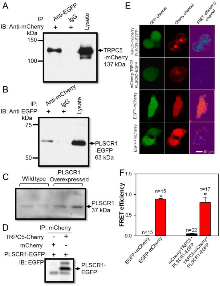 Association between TRPC5 and PLSCR1 in HEK293 cells. ( A , B ) Representative images of co-immunoprecipitation experiments in TRPC5-mCherry and PLSCR1-EGFP co-expressing HEK293 cells. ( A ): IP, anti-EGFP antibody or IgG; IB, anti-mCherry antibody. ( B ), IP, anti-mCherry antibody or IgG; IB, anti-EGFP antibody. Immunoblots of cell lysates were also shown on the right. ( C ) Representative images showing the expression of PLSCR1 in wild-type and PLSCR1-overexpressing HEK293 cells. ( D ) Representative images of co-immunoprecipitation experiments in HEK293 cells co-expressed with mCherry plus PLSCR1-EGFP, or with TRPC5-mCherry plus PLSCR1-EGFP. IP, mCherry antibody; IB, anti-EGFP antibody. ( E ) Representative images showing fluorescence signals in a FRET assay. HEK293 cells were overexpressed with different constructs as indicated. TRPC5-mCherry, mCherry tagged at the carboxyl terminus of TRPC5; mCherry-TRPC5, mCherry tagged at the amino terminus of TRPC5; PLSCR1-EGFP, EGFP tagged at the carboxyl terminus of PLSCR1. The EGFP emission signal was detected as green fluorescence (GFP channel), while the mCherry emission signal was detected as red fluorescence (Cherry channel). The FRET efficiency fluorescence was shown in the FRET efficiency channel. ( F ) Summary of data showing the differences in FRET efficiency. Values are shown as the mean ± SEM (n = 15–22); * p