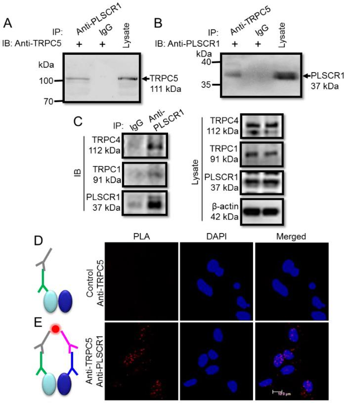 Association between TRPC5 and PLSCR1 in freshly isolated mouse cortical neurons. ( A , B ) Representative images of co-immunoprecipitation experiments. ( A ): IP, anti-PLSCR1 antibody or IgG; IB, anti-TRPC5 antibody. B , IP, anti-TRPC5 antibody or IgG; IB, anti-PLSCR1 antibody. Immunoblots of cell lysates were also shown on the right. ( A ), immunoblot with rabbit anti-TRPC5 antibody; ( B ), immunoblot with goat anti-PLSCR1 antibody). The experiments were repeated for three times. ( C ) Representative images of co-immunoprecipitation experiments. Right: IP, anti-PLSCR1 antibody or IgG; IB, anti-TRPC1, anti-TRPC4, or anti-PLSCR1 antibody. Left, Immunoblots of cell lysates were also shown. ( D , E ) In situ proximity ligation assay (PLA) to identify the association between TRPC5 and PLSCR1 in native neurons. Representative images were in the presence of both anti-TRPC5 and anti-PLSCR1 antibodies ( E ), or in the presence of anti-TRPC5 antibody alone (Control) ( D ). In D and E , gray sign: anti-goat PLA probe Plus, green sign: goat anti-TRPC5 antibody, pink sign: anti-rabbit PLA probe Minus, blue sign: rabbit anti-PLSCR1 antibody, red dot: PLA signal, left oval: TRPC5 protein, right oval: PLSCR1 protein. Nuclei were stained blue by DAPI.