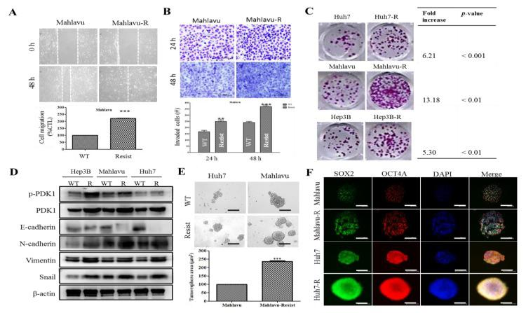 PDK1-dependent radioresistance is associated with the enhanced metastatic and cancer stem cell-like phenotypes of HCC cells. Representative photo-images (upper panel) and histograms (lower panel) comparing ( A ) migration and ( B ) invasion potential between Mahlavu and Mahlavu-R cells. Scale bar: 100 μm, 10× objective. ( C ) Representative photo-images (left panel) comparing clonogenicity between Huh7-R, Mahlavu-R, Hep3B-R and their wild-type counterparts. Scale bar: 100 μm, 10× objective. ( D ) Representative Western blot images of the differential expression of p-PDK1, PDK1, E-cadherin, N -cadherin, Vimentin or Snail protein in wild-type and IR-resistant Hep3B, Mahlavu or Huh7 cells. β-actin was used as a loading control. ( E ) Representative photo-images (upper panel) and histograms (lower panel) comparing the tumorsphere formation potential between wild-type (WT) and IR-resistant Huh7 or Mahlavu cells. Scale bar: 100 μm, 10× objective. ( F ) Representative immunofluorescence staining images of SOX2 and OCT4A expression in WT and IR-resistant Huh7 or Mahlavu cells. DAPI served as nuclear marker. Scale bar: 100 μm, 10× objective. * p
