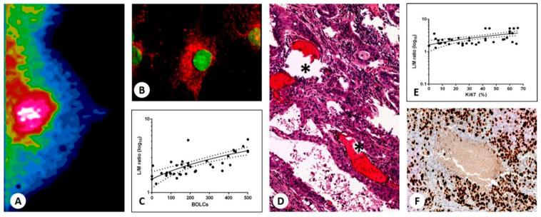 [ 99 mTc]Tc-Sestamibi uptake in breast cancer. ( A ) Image shows [ 99 mTc]Tc-Sestamibi uptake in a 55-year-old patient. ( B ) <t>RUNX2-</t> and <t>RANKL-positive</t> breast cancer cells. RANKL appears Texas-Red labeled, whereas RUNX2 is FITC-labeled. ( C ) Graph shows a significant association between lesion to non-lesion ratio and the number of breast osteoblast-like cells (BOLCs) (r 2 = 0.5056; p