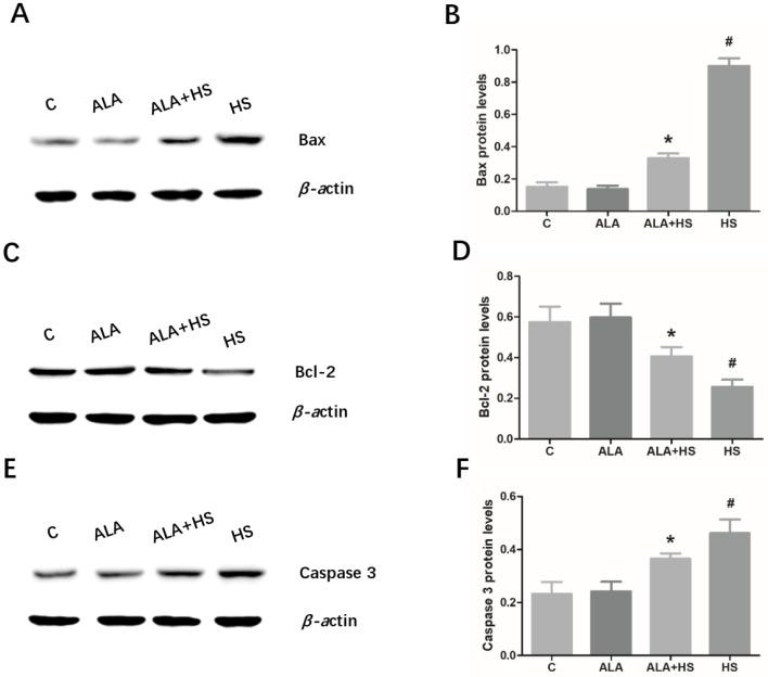 The effect of alpha lipoic acid on the expression of key apoptosis-related modulators in the testes of chickens exposed to heat stress. Western blotting analysis of the expression of apoptosis-related proteins, ( A ) Bax, ( C ) Bcl-2, and ( E ) caspase 3. ( B ) Bax, ( D ) Bcl-2, and ( F ) caspase 3 protein expression levels were normalized to β-actin levels. The statistical analysis results are shown as bar graphs. The data are presented as the mean ± SE of three independent experiments. Note: * p