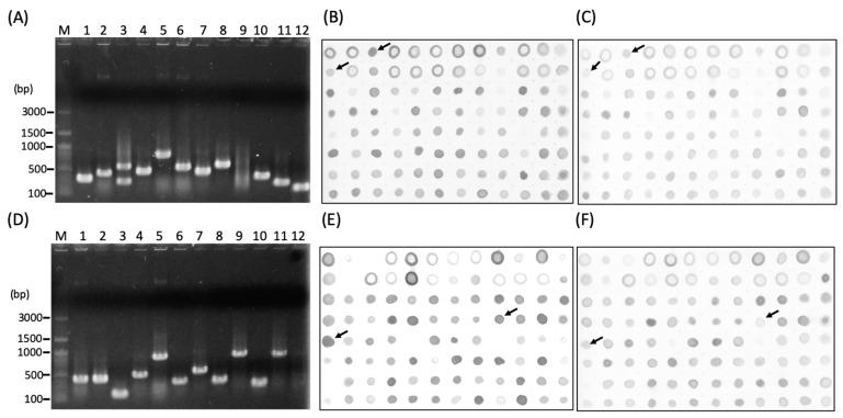 Screening and identification of differential expressed sequence tags (ESTs) from the Nosema ceranae infected honey bee by suppression subtractive hybridization (SSH) and Dot-blotting. ESTs insert size of ( A ) forward and ( D ) reverse SSH complementary DNA (cDNA) libraries were confirmed by colony PCR. ( B ) Forward subtractive library (fsl, differential ESTs in infected group) hybridized with forward-subtracted probe and ( C ) with reverse-subtracted probe. ( E ) Reverse subtractive library (rsl, differential ESTs in control group) hybridized with reverse-subtracted probe and ( F ) with forward-subtracted probe. M = 100 bp DNA ladder. The arrows indicated the differential ESTs for sequencing.