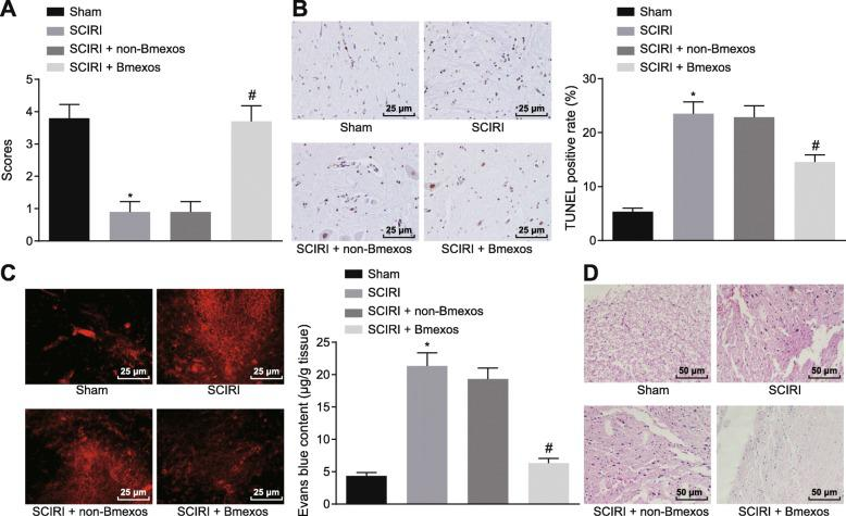 SCIRI could be alleviated by miR-124-3p overexpression. a Evaluation of hindlimb motor function in rats. b Cell apoptosis in spinal cord tissues determined by TUNEL assay (× 400). c BSCB integrity tested by EB staining (× 400). d H E staining of spinal cord tissues of rats (× 200). * p