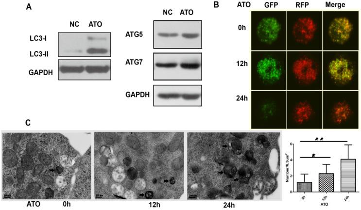 ATO induced autophagy in the FLT3-ITD AML cell line. (A) MV4-11 cells were treated with ATO for 24 h, and the expression levels of LC3, ATG5 and ATG7 were detected by western blot analysis. GAPDH expression was used as a loading control. (B) MV4-11 cells transfected with mRFP-GFP-LC3 plasmids were treated with ATO for 0, 12, and 24 h and then observed by confocal fluorescence microscopy. Scale bar=5 µm. (C) MV4-11 cells were treated with ATO for 0, 12, and 24 h. The number of autophagosomes was observed by transmission electron microscopy and calculated (each group had 30 views, * P