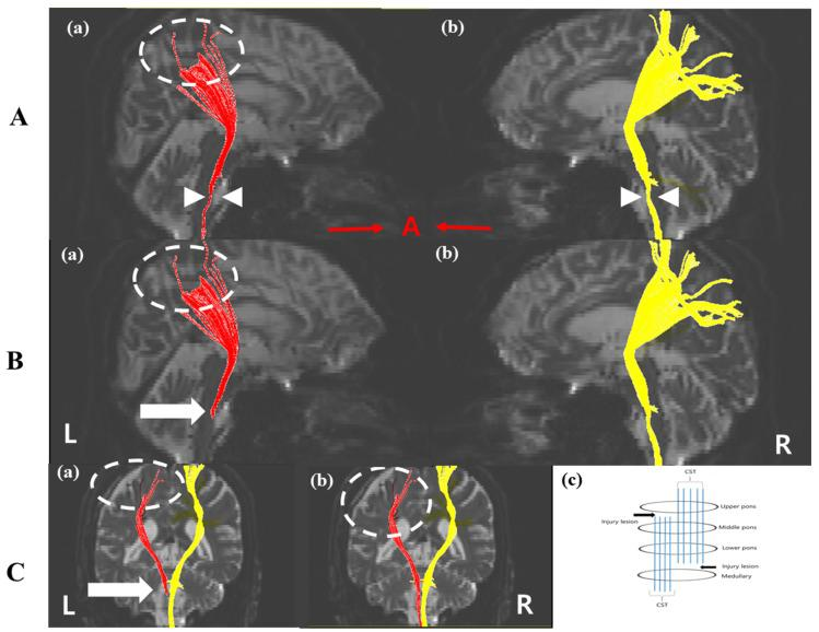Diffusion Tensor Tractography images four weeks after onset. ( A ) Tract 1 which used <t>ROIs</t> on the lower pons and middle pons showed that (a) the left CST was thinner than the right CST (white arrow head) and (b) discontinuation in the cerebral cortex in the left CST appeared (white dashed circle). ( B ) Tract 2 using ROIs on the lower pons and upper pons indicated the thinner left CST (a) compared with than the right CST (b) did not reach the cerebral cortex (white dashed circle) and the disconnection below the lower pons is shown (white arrow). ( C ) The disruption of the left CST around the EDH location (dashed circle) (a,b) and the dissociation of the left CST below the lower pons (white arrow). (c) Injury lesions analyzed by <t>DTT</t> results. Injury lesions were below the lower pons and between upper and lower pons. CST: corticospinal tract, EDH: epidural hematoma, ROI: region of interest, DTT: diffusion tensor tractography.