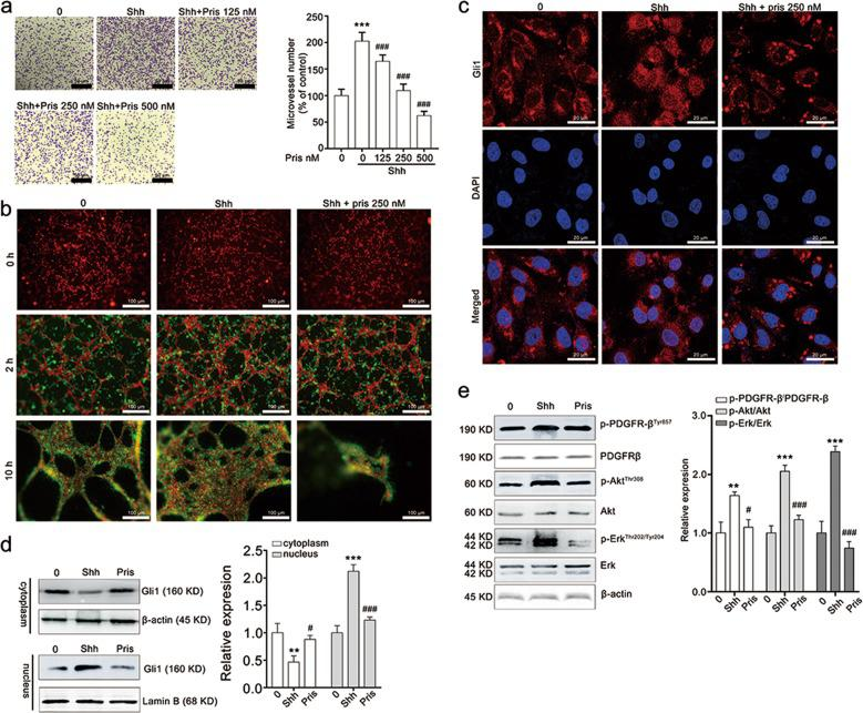 Pristimerin treatment decreases Shh-induced pericyte motilities of angiogenesis. a Pristimerin suppresses Shh-mediated adhesion ability of endothelial cells. The cells that pre-treated with Shh (100 ng/mL) and pristimerin (125, 250, and 500 nM) were seeded at 24-well plate. After 1-h culture, the un-attached cells were removed and the attached cells were stained with 0.1% crystal violet. b Pristimerin restrains Shh-induced pericyte migration to newly formed networks in a three-dimensional co-culture system of HUVEC and HBVP. HUVECs (red) were seeded on Matrigel-coated 96-well and cultured for 2 h to allow the formation of tube network. And HBVPs (green) pre-treated with or without pristimerin were added to the endothelial tubes. The recruitment of HBVPs to HUVEC tubes were observed and photographed at 0, 2, and 12 h. Scale bar: 20 μm. c Pristimerin suppresses the nucleus translocation of Gli1in HBVPs. HBVPs were stimulated with Shh (100 ng/mL) and pristimerin for 24 h. After staining with 4% paraformaldehyde, the HBVPs were labeled with Gli1 antibody and <t>Alexa</t> <t>Fluor</t> 488 Donkey anti-Rabbit <t>IgG.</t> DAPI was used to recognize the nucleus, and the images were taken with a laser scanning confocal microscope. d Pristimerin inhibits the distribution of Gli1 in the nucleus. HBVPs were collected and lysed with a NE-PERTM Nucleus and Cytoplasmic Extraction Kit following the manufacturer's protocol, and then applied for western blotting assay. β-actin and Lamin B were set as loading control. e Pristimerin blocks the downstream of Shh/Gli1 signaling pathway. After being treated with Shh and pristimerin for 24 h, HBVP cells were lysed using RIPA buffer and subjected to western blotting assay. β-actin was set as loading control. The data are presented as mean ± SEM, n = 3. *** P