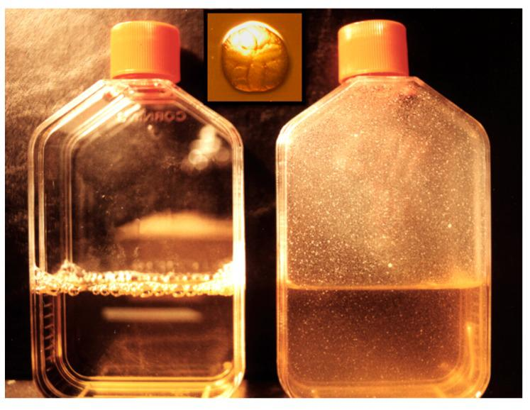 A. actinomycetemcomitans abiotic surfaces. A. actinomycetemcomitans was inoculated into a flask and allowed to grow on the side of the flask for three days. The flask on the left is an un-inoculated control. The flask on the right shows binding of A. actinomycetemcomitans to the side of the flask and no microbes can be found in the media. The insert in the center is the colonial morphology of A. actinomycetemcomitans showing star on top and rough colonial outer surface.