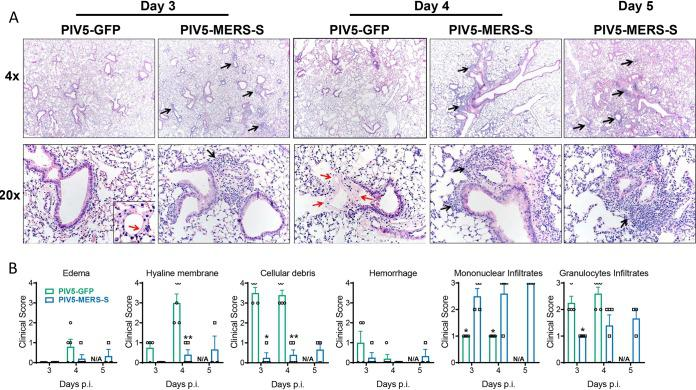 Histopathology in immunized mice challenged with MERS-CoV. hDPP4 KI mice were intranasally immunized with 10 4 PFU PIV5-MERS-S or PIV5-GFP. Four weeks after immunization, the mice were intranasally infected with 10 5 PFU MERS MA 6.1.2. (A) Representative images of H E-stained lung sections from PIV5-MERS-S- or PIV5-GFP-immunized hDPP4 KI mice at indicated days after MERS MA 6.1.2 challenge. Note the cellular infiltration (black arrows) and the hyaline membranes (red arrows). (B) Summary scores for disease in the lung sections. n = 3 to 5 mice/group. * denotes P