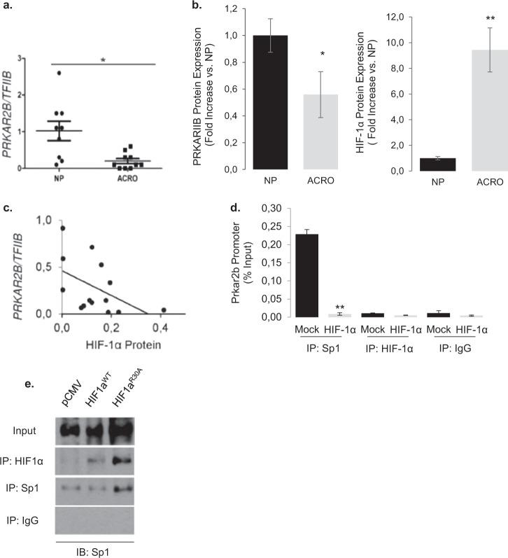 HIF-1a modulates PRKAR2B expression via Sp1 promoter binding and their expression levels are inverse correlated in acromegalic tumors. a , d Chromatin immunoprecipitation showing decreased Sp1 binding on the Prkar2b promoter in GH3 cells overexpressing HIF-1α. No DNA binding was quantified with HIF-1α. Rabbit IgG was used as control. b , e Co-immunoprecipitation experiment showing that both HIF-1α and HIF-1αR30A physically associate with Sp1. HIF-1α and Sp1 immunoprecipitates were blotted for Sp1. Proteins immunoprecipitated with rabbit IgG were used as controls. c , a Expression of PRKAR2B gene in normal pituitary glands ( n = 9) and acromegalic tumors (ACRO, n = 10). Data are PRAKR2B / TFIIB . * P = 0.006 ( U -test). d , b Western blot analysis of normal pituitary (NP) and GH-secreting tumors (ACRO) showed a significant loss of PRKAR2B protein expression, whereas HIF-1α protein levels measured in the same tumors are significantly increased in ACRO vs NP ( n = 4 per group due to scarcity of material for dual measurement). e , c Linear regression analysis of PRKAR2B transcript and HIF-1α protein levels in 14 acromegalic tumors. PRKAR2B was determined by real-time RT-PCR and values are PRKAR2B / TFIIB arbitrary units. HIF-1α protein was quantified from immunoblots (Chemidoc). Kendall's τ = −0.663, r t = −0.480, P = 0.009.