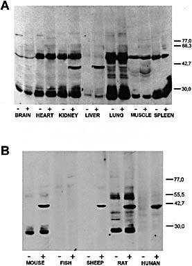 Reactivity of sera from MHV‐infected CBA/Ht mice with extracts of several tissues from non‐infected CBA/Ht mice (A) or liver lysate from different sources (B). Organ lysates were prepared as indicated in Sect. 4 and run in SDS‐PAGE using 10% gels, transferred onto nitrocellulose sheets and incubated with a 1:100 serum dilution. Bound antibodies were revealed with peroxidase‐labeled IgG anti‐mouse IgG and ECL reagents. Results were obtained with pooled serum from four mice. Control serum (–) means serum obtained before infection and (+) indicates serum corresponding to 8 weeks post‐infection with MHV. The positions of molecular mass markers (kDa) are shown at right. WILEY‐VCH