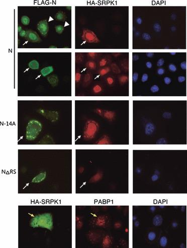 Overexpression of SRPK1 prevents N protein translocation to stress granules. HeLa cells were transiently cotransfected with vectors encoding FLAG‐tagged full‐length N, N‐14A or NΔRS and HA‐tagged SRPK1, and treated with arsenite as in Fig. 4B . Immunofluorescence using anti‐HA and anti‐FLAG was performed; two representative images are shown for the N protein. Arrowheads indicate cells that expressed FLAG‐N protein alone, and white arrows indicate cells expressing both FLAG‐N and HA‐SRPK1. Cell nuclei were stained with 4′,6′‐diamidino‐2‐phenylindole (DAPI). The lower panel shows double immunofluorescence of HA‐SRPK1‐overexpressing HeLa cells using anti‐HA and anti‐PABP. Yellow arrows indicate cells that overexpressed HA‐SRPK1.