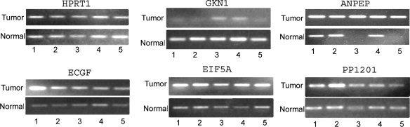 Visualization of RT‐PCR products on gel electrophoresis. Five matched tumor and normal samples that were analyzed using qRT‐PCR were subjected to 1.2% agarose gel electrophoresis and ethidium bromide staining. The intensity of bands confirms the PCR results, indicating higher mRNA expression levels of ANPEP, PP1201, EIF5A1 , and ECGF , as well as lower expression of GKN1 in most of the tumor samples as compared with their matched normal control samples. HPRT1 was used as a control to show similar levels in each matched normal and tumor samples.