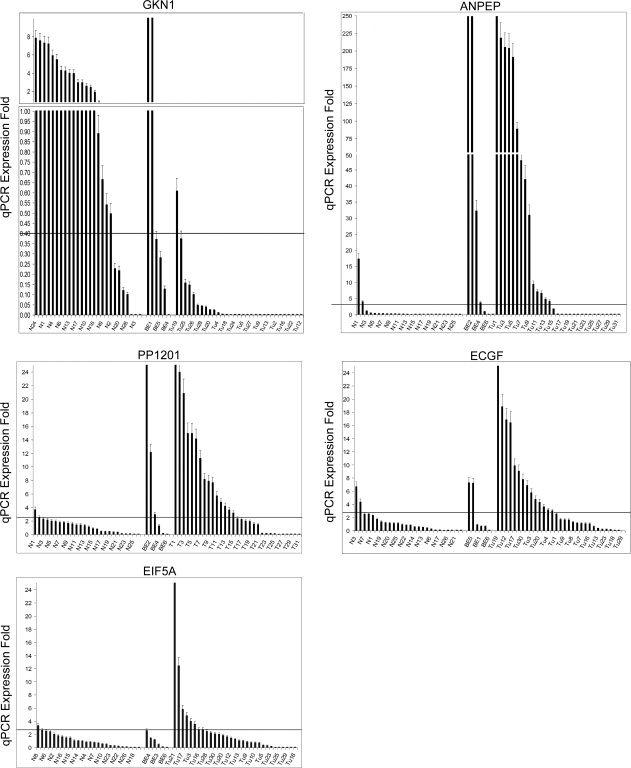 """Quantitative real‐time reverse‐transcription PCR showing fold expression changes at the mRNA level of five representative genes. qRT‐PCR analysis was performed using iCycler on 31 lower esophageal and GEJ adenocarcinoma samples (Tu) and 6 Barrett's esophagus (BE) samples in comparison with 26 normal glandular mucosa samples (N). The horizontal axis shows sample numbers, whereas the fold expression in tumor samples compared with that in normal samples is shown on the vertical axis. The fold expression was calculated according to the formula: as detailed in the """" Materials and Methods """" section. Each bar represents one sample. The displayed mean fold expression for each sample is calculated in comparison with the expression average of the 26 normal samples. The expression of each gene was normalized to the expression of HPRT1 , which showed minimal variation in all normal and neoplastic samples tested. GKN1 shows downregulation (≤0.4‐fold expression) whereas ANPEP , PP1201 , EIF5A1 , and ECGF1 demonstrate overexpression (≥2.5 fold expression) in primary tumors as compared to normal tissue samples."""