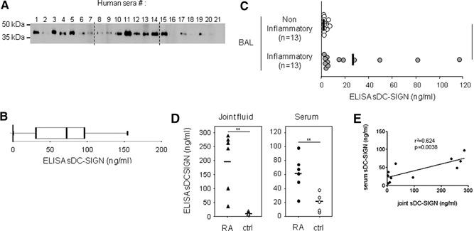 sDC‐SIGN is released in higher amounts in inflammatory human body fluids. (A) sDC‐SIGN was detected in human sera from 21 healthy blood donors by Western blot analysis. Each serum (10 μl) was mixed with 2× loading buffer before migrating on a SDS‐PAGE gel (10% acrylamide) under reducing conditions. After transfer onto a nitrocellulose membrane, sDC‐SIGN was detected by immunoblotting with the mAb 3E1 (anti‐DC‐SIGN). Dashed lines indicate separation among three distinct digitalized gel pictures. (B) sDC‐SIGN was quantified in the serum of 62 healthy volunteers by ELISA. Values are indicated in ng/ml and have been displayed as a box‐and‐whisker plot, done with the GraphPad Prism software (mean serum sDC‐SIGN concentration=65.36 ng/ml; min=0 ng/ml; max=154 ng/ml; median=72 ng/ml; 25th percentile=32.41 ng/ml; 75th percentile=95.75 ng/ml). (C) BAL from patients were collected and analyzed by sDC‐SIGN ELISA. Samples were separated according to their inflammatory status [i.e., (CRP) serum