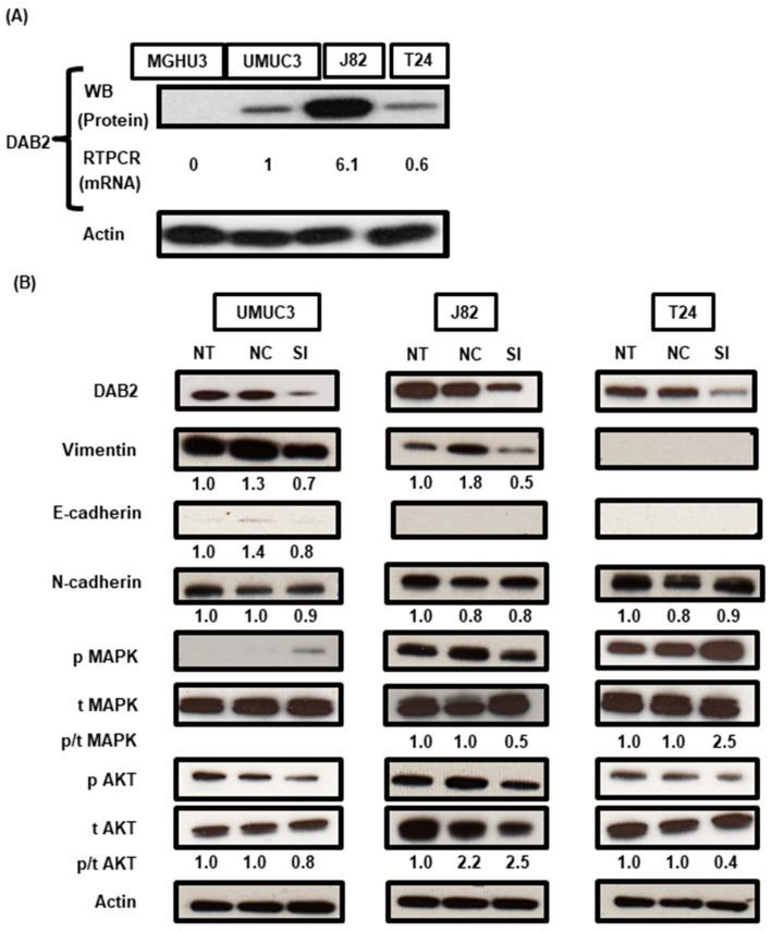 ( A ) In four human UC cell lines, western blot analysis (WB) revealed DAB2 protein expression in UM-UC-3, <t>J82,</t> and T24 cells, whereas MGH-U-3 cells did not express DAB2 protein. The RT-qPCR analysis also revealed mRNA expression of DAB2 corresponded to the results of WB. ( B ) In three cell lines knocked-down with DAB2 siRNA transfection, DAB2 protein reduction was confirmed by WB. Epithelial-to-mesenchymal transition-related markers, proteins involved in the activation of intracellular signaling pathways, were quantified by western blot analysis. Actin was used as a loading control. The numbers below the bands are the results of densitometric quantification. NT: No treatment; NC: Negative control; SI: DAB2 -si RNA.