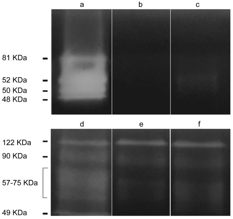 Protease zymogram for the <t>Acanthamoeba</t> T5 isolate. Lanes: ( a ) Acanthamoeba conditioned medium (ACM), ( b ) ACM incubated with phenylmethylsulfonyl fluoride (PMSF) (inhibitor of serine proteases), ( c ) ACM incubated with 2-iodoacetamide (inhibitor of cysteine proteases), ( d ) crude extract of trophozoites, ( e ) crude extract of trophozoites incubated with PMSF and ( f ) crude extract of trophozoites incubated with 2-iodoacetamide.