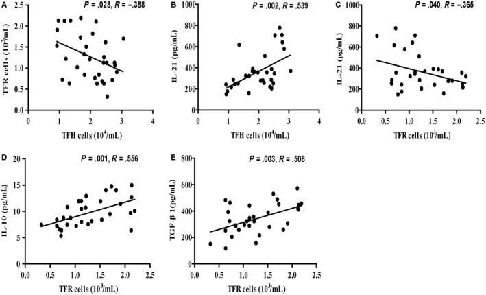 Correlation among the numbers of different subsets of TFR and TFH cells and the levels of serum IL‐21, IL‐10 and TGF‐β1 in AIH patients. A, Correlation between the numbers of TFR cells and the numbers of TFH cells in AIH patients; B, correlation between the numbers of TFH cells and serum levels of IL‐21 in AIH patients; C, correlation between the numbers of TFR cells and serum levels of IL‐21 in AIH patients; D, correlation between the numbers of TFR cells and serum levels of IL‐10 in AIH patients; E, correlation between the numbers of TFR cells and serum levels of TGF‐β1 in AIH patients