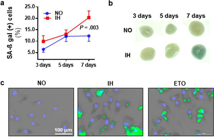 Intermittent hypoxia (IH) induces senescence in cultured preadipocytes. Exposure to 7 days of IH was associated with a higher prevalence of senescence associated β-galactosidase (SA-β-gal) positive preadipocytes (n = 6 independent experiments) ( a ). Compared to tissue grown in continuous normoxia (NO), chronic IH exposure was also associated with stronger green coloration of SA-β-gal staining in subcutaneous adipose tissue explants ( ex vivo ) ( b ). Representative images of SA-β-gal staining in cells exposed to 7 days of IH ( c ). Green marks indicate SA-β-gal positive (senescent) cells; Etoposide (ETO) treatment served as a positive control. Data are presented as mean ± SEM. P -values determined by one-tailed paired t-test compared to the NO control.