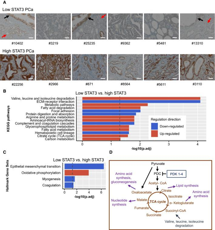 Proteomics show TCA / OXPHOS up‐regulation in low STAT 3 human FFPE PC a STAT3 immunohistochemistry staining of low STAT3 and high STAT3 PCa samples. Red arrows indicate transformed PCa glands; black arrows indicate pre‐transformed normal prostate glands. Scale bar = 100 μm. #, sample‐IDs. Significantly enriched KEGG pathways in low STAT3 versus high STAT3 groups. Dotted line: adj. P ‐value = ‐log10(0.05). Significantly enriched hallmark gene sets in low STAT3 versus high STAT3 groups. Dotted line: adj. P ‐value = ‐log10(0.05). Red = up‐regulated; blue = down‐regulated. Simplified scheme of the TCA cycle and associated metabolic pathways. TCA cycle, tricarboxylic acid cycle; PDC, pyruvate dehydrogenase complex; PDK, pyruvate dehydrogenase kinase. Graphic adapted from Gray et al , 2014 and Jang et al , 2013 .