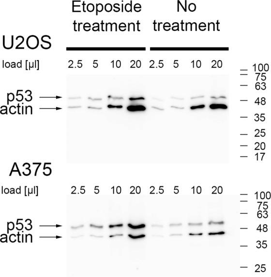 Etoposide treatment increases intracellular levels of the p53 protein in U2OS and A375 cells. Serial dilutions of cell lysates (load) from untreated cells and cells treated with 10 µg/ml etoposide for two hours were analyzed by western blotting. Membranes were developed with anti-β-actin and anti-p53 (DO-1) antibodies. Numbers on the side correspond to the protein MW ladder.