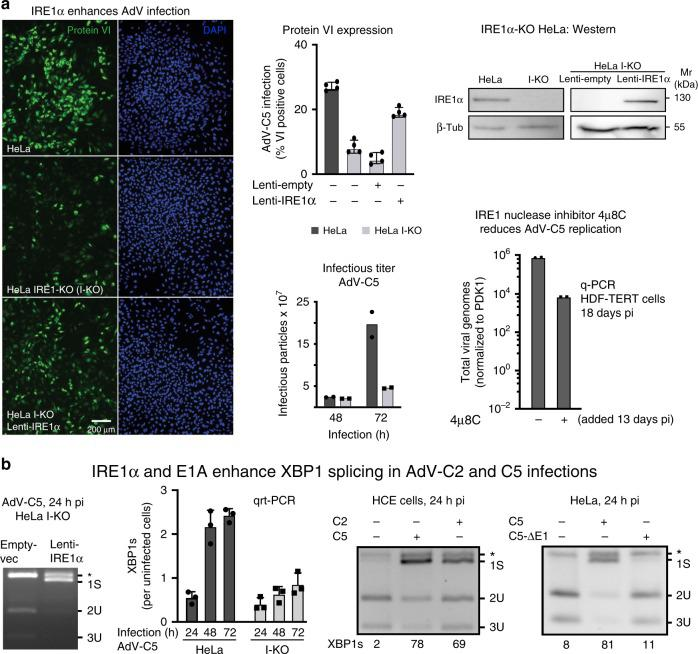 IRE1α activation enhances AdV infection of HeLa cells. a IRE1α-knockout (I-KO) HeLa cells are less susceptible to infection by AdV-C5 (MOI 75, 75 vp/cell) compared with normal HeLa, as indicated by late viral protein VI expression, whereas the ectopic lentivirus-mediated expression of IRE1α in HeLa I-KO cells restores infection (left panel, upper row middle and right panels showing representative images and quantifications, respectively. Scale bar, 200 µm). Data show the means ± SD from four independent experiments. Reduced virus growth in HeLa I-KO cells compared with wild-type cells. Cells were infected with AdV-C5 (MOI 500) for 1 h at 37 °C (equivalent to MOI 50 in continuous infection), unbound virus washed off, and virus titers from cells and supernatant measured at 48 and 72 hpi (lower row middle panel). Data show the means from two independent experiments. The IRE1α endonuclease inhibitor 4µ8C reduces AdV-C5 titers in long-term infections of HDF-TERT cells (lower row, right panel). HDF-TERT cells were infected with AdV-C5 (MOI 200, 37 °C, 1 h), followed by addition of 4µ8C (100 µM) 13 days pi. Data show the means from two independent experiments. b . IRE1α and the expression of the viral E1A protein are required to enhance XBP1 splicing in AdV-C2 and C5 infections. Rescue of XBP1 splicing in AdV-infected I-KO cells by IRE1α overexpression (first panel). Cells were transduced and infected as in a ; cell lysates were subjected to XBP1 splicing assays at 24 hpi. Reduced XBP1s transcripts in HeLa I-KO compared with normal HeLa cells upon AdV-C5 infection (MOI 5, second panel). Data show the means ± SD from three independent experiments. XBP1 splicing in human conjunctival epithelial cells infected with AdV-C2 or C5 (MOI 75, third panel). E1A -deleted AdV-C5 mutant does not activate XBP1 splicing in HeLa cells 24 hpi (MOI 200 each, fourth panel). The asterisk denotes a background product. Source data are provided as a Source Data file.