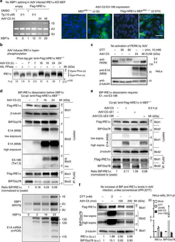AdV infection of mouse embryonic fibroblasts induces XBP1 splicing and displaces BiP/Grp78 from IRE1α. a Flag-IRE1α-expressing MEFs but not IRE1α-KO MEFs induce XBP1s upon AdV-C2 infection (MOI 300) or thapsigargin (Tg, 10 µM) treatment (left panel). Representative immunofluorescence images with the anti-19K antibody 3A9 showing 19K expression in AdV-C-infected IRE1α-KO MEFs and Flag-IRE1α-expressing IRE1α-KO MEFs 24 hpi (clones 30 and 574, respectively, right panel, scale bar, 20 µm). Three independent experiments gave similar results. Source data are provided as a Source Data file. b AdV induces phosphorylation of IRE1α. Flag-IRE1α expressing IRE1α-KO MEFs at 7, 16, and 24 hpi with AdV-C5 (MOI 300) immunoblotted with anti-IRE1α antibody. Lysates were resolved on a 6% SDS-PAGE gel containing 25 µM Phos-tag. Samples were treated with or without alkaline phosphatase. Phosphorylated (p) and hypophosphorylated (o) forms of IRE1α are indicated by the dashed lines, and the percentage of IRE1α phosphorylated was calculated as indicated. Lysates are the same as in panel D demonstrating β-tubulin loading. Three independent experiments gave similar results. Source data are provided as a Source Data file. c AdV-C5 infection of HeLa cells (MOI 200) does not activate PERK, unlike treatment of cells with the reducing agent DTT. Activated phosphorylated PERK is indicated by p, and the inactive form by o. Two independent experiments gave similar results. d BiP displacement from IRE1α occurs before XBP1 splicing in Flag-IRE1α-expressing IRE1α-KO MEFs infected with AdV-C5 (MOI 300). Cells were lysed and BiP–IRE1α complexes immunoprecipitated (IP) with anti-Flag antibody, and a western blot with anti-IRE1α, anti-BiP, and anti-β-tubulin antibodies was performed. A separate non-reducing immunoblot probed with anti-19K Tw1.3 antibodies revealed monomeric and dimer forms of 19K indicated as mo and di, respectively. Input lysates were 1% of the immunoprecipitated samples. The corresponding samples were also analyzed for XBP1 splicing and E1A mRNA levels by rt-PCR (reverse transcription polymerase chain reaction), as indicated. Three independent experiments gave similar results. Source data are provided as a Source Data file. e BiP–IRE1α dissociation requires E1, not 19K. Co-immunoprecipitation of Flag-IRE1α and BiP was performed as described in d with AdV mutants lacking E1 (AdV-C5-∆E1) and 19K (AdV-C5-Δ19K) at MOI 300 each. Two independent experiments gave similar results. Source data are provided as a Source Data file. f AdV-C5 infection does not increase BiP/Grp78 and IRE1α levels given in arbitrary units (a.u.), unlike the canonical UPR triggered by DTT (2 mM). The bar graph shows the normalized levels of IRE1α and BiP from three independent experiments. Data show the means ± SD from three independent experiments. Source data are provided as a Source Data file.