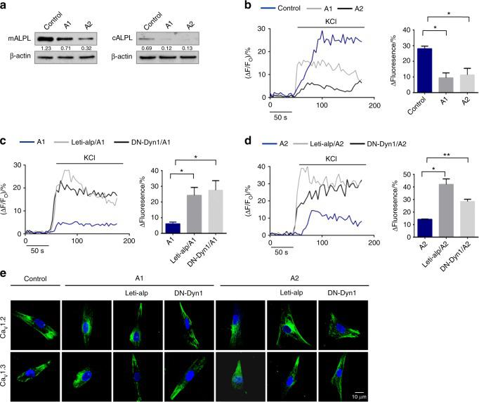 ALPL deficiency promoted the internalization of L-type Ca 2+ channels in HPP patient-derived BMSCs. a The expression of ALPL on the membrane and cytoplasm was decreased in BMSCs from two HPP patients compared with that of normal human BMSCs. β-actin was used as a protein loading control. b Intracellular Ca 2+ imaging analysis showed that KCl-induced Ca 2+ influx was significantly decreased in cultured BMSCs from HPP patients compared with that of normal human BMSCs. c Overexpression of ALPL or transfection with DN-Dyn1 in BMSCs from A1 patients showed elevated KCl-induced Ca 2+ influx. d Overexpression of ALPL or transfection with DN-Dyn1 in BMSCs from A2 patients showed elevated KCl-induced Ca 2+ influx. e Representative images of confocal laser scanning microscopy showing the membrane location of Ca V 1.2 and Ca V 1.3 in control BMSCs, A1 BMSCs, A2 BMSCs, A1 and A2 BMSCs overexpressing ALPL, and A1 and A2 BMSCs transfected with DN-Dyn1. Scale bar, 10 μm. The representative results from three independent experiments are shown. Error bars represent the s.d. from the mean values. * P
